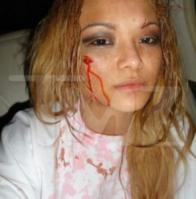 15037_tila_tequila_attacked_295x300_122_526lo.jpg